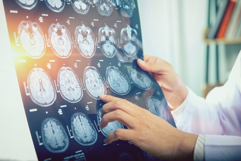 vascular neurosurgery img